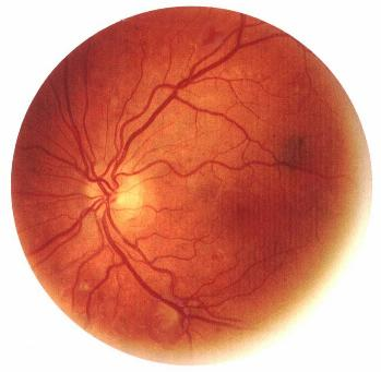 blood_vessels_in_retina